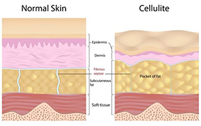A cellulite chart showing you what you look like when you don't have a cellulite challenge & when you do